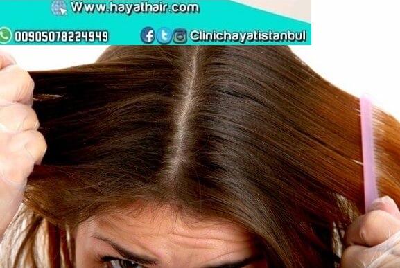 طرق تقوية الشعر الخفيف