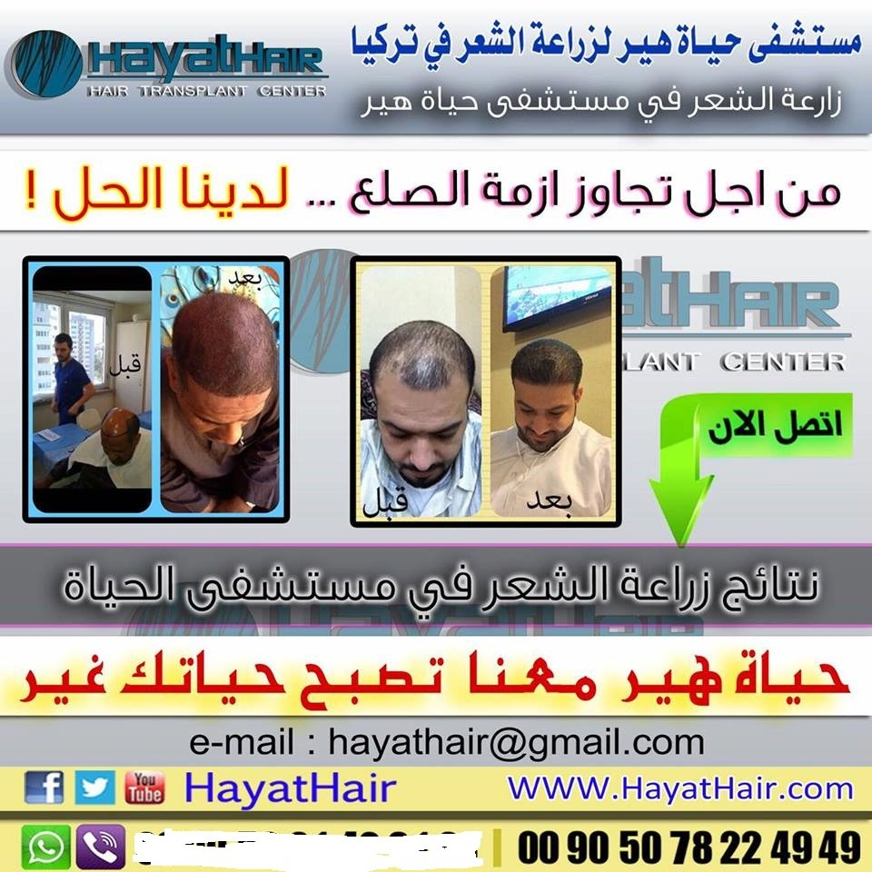 زراعة الشعر في تركيا تجربتي