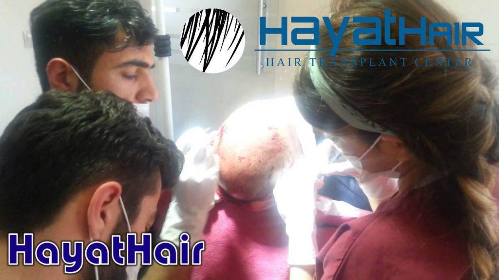 زراعة الشعر في انطاليا