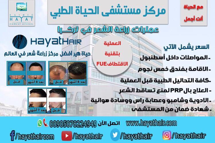 احدث تقنيات زراعة الشعر في تركيا