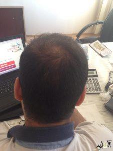 تجارب زراعة الشعر للرجال في تركيا
