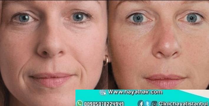 عمليات حشو الجلد التجميلية