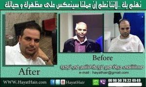 تجربة زراعة الشعر في تركيا بالصور