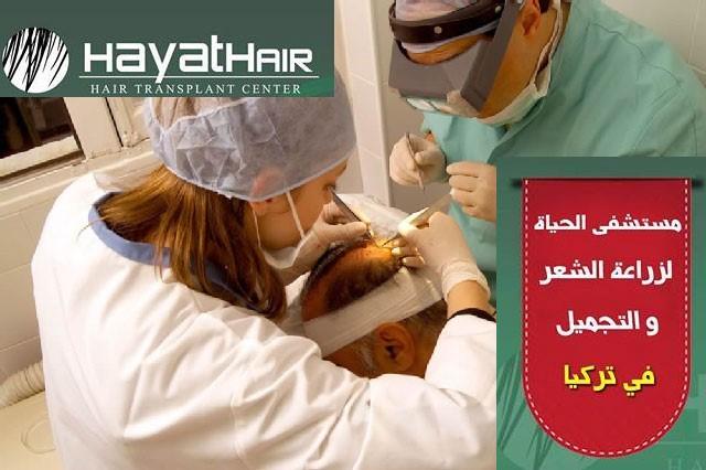 زراعة الشعر بتقنية اقلام تشوي في تركيا
