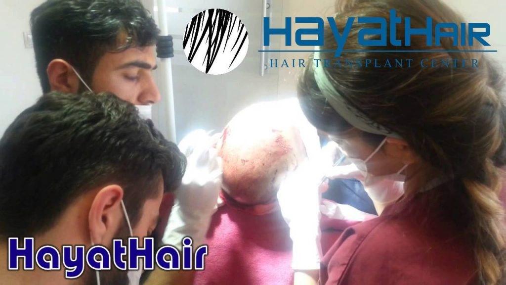 زراعة الشعر في انقرة