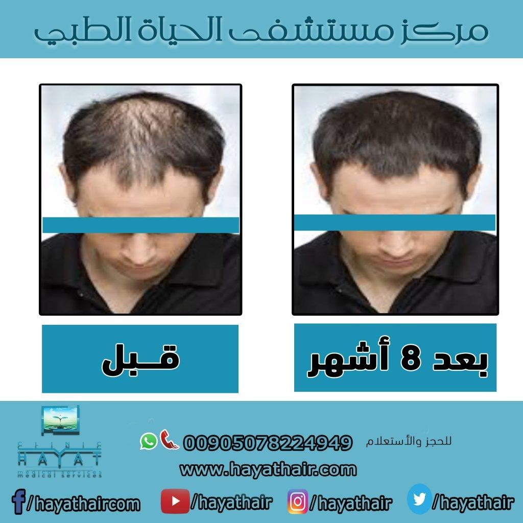 زراعة الشعر في طرابزون
