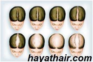 زراعة الشعر للنساء في تركيا بدون حلاقة