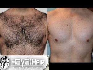 زراعة شعر الصدر في تركيا
