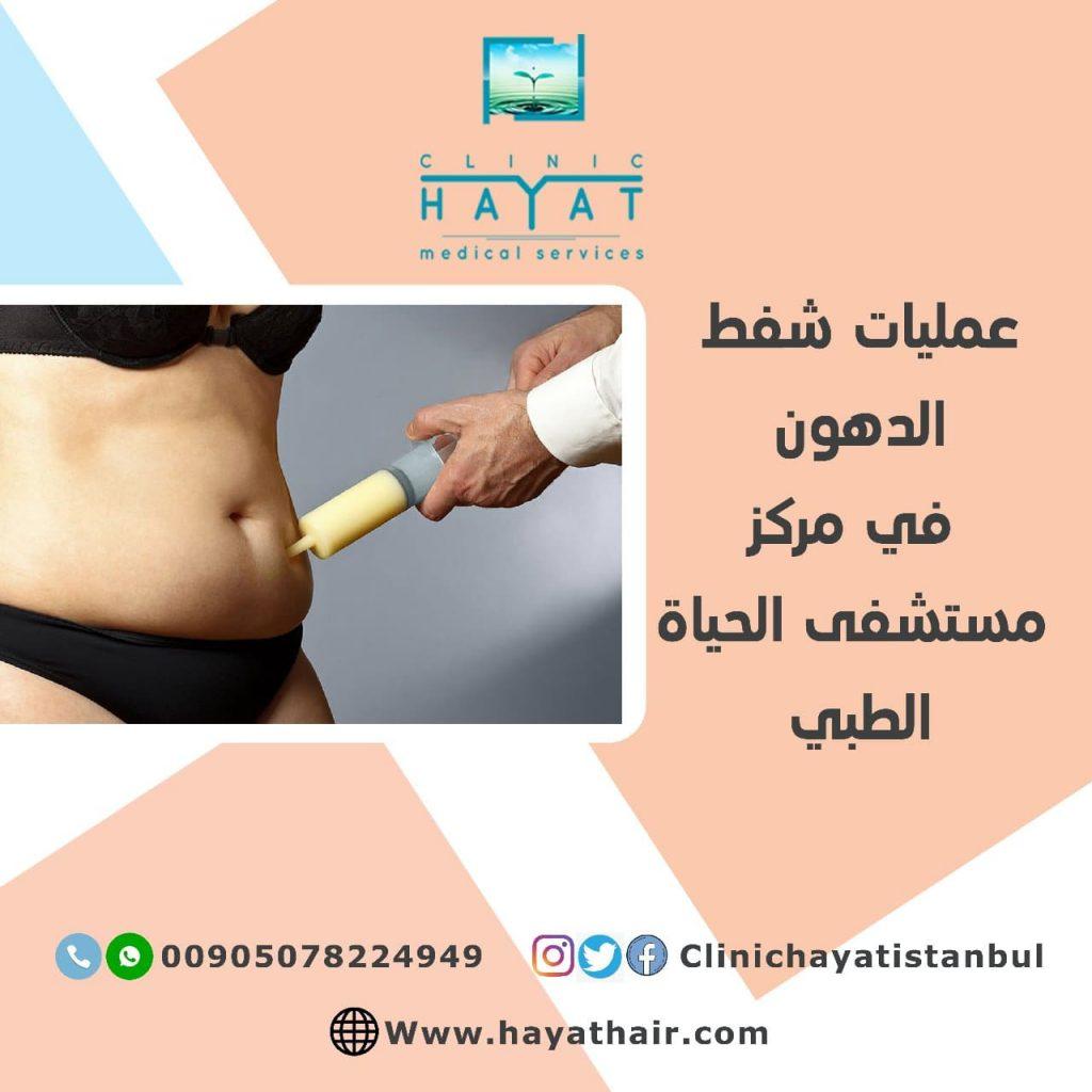 شفط الدهون بالليزر في تركيا