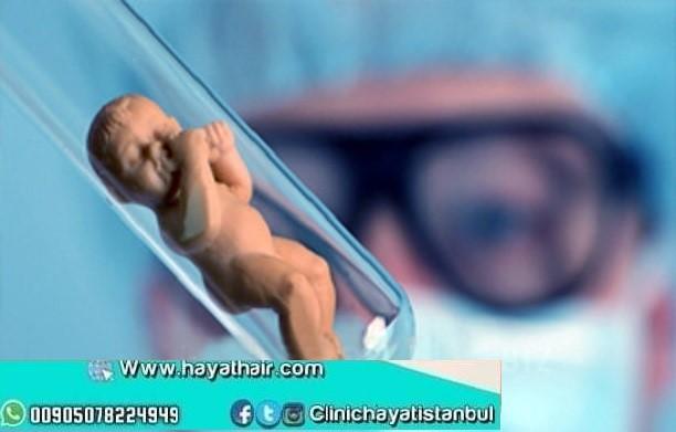 عملية طفل الانبوب في اسطنبول تركيا