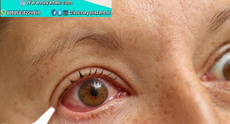 علاج الماء الابيض للعين في تركيا