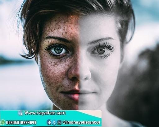 ازالة وعلاج النمش في تركيا اسطنبول