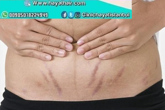 علاج تشققات الجلد في تركيا