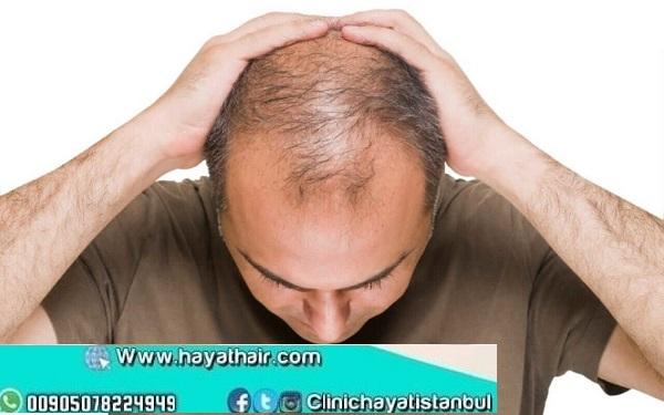 زراعة الشعر لمرضى السكر في تركيا