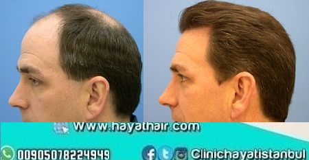 زراعة الشعر بتقنية الإقتطاف الدقيق Nano Fue