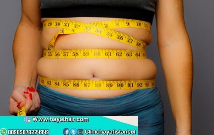 تكلفة شفط الدهون في تركيا