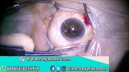 زراعة عدسات العين في تركيا