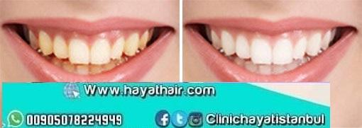 تبييض الاسنان في تركيا