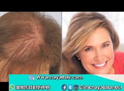زراعة الشعر الايطالي الصناعي بتقنية بيوفايبر في تركيا