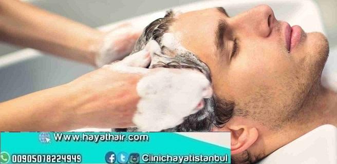 طريقة غسل الشعر بعد زراعة الشعر