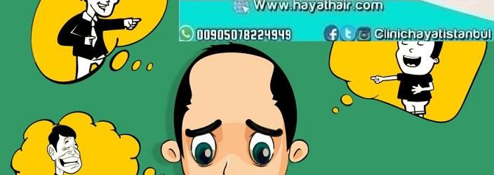 أسباب فشل عملية زراعة الشعر