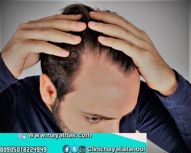 علاج الشعر الخفيف من الأمام
