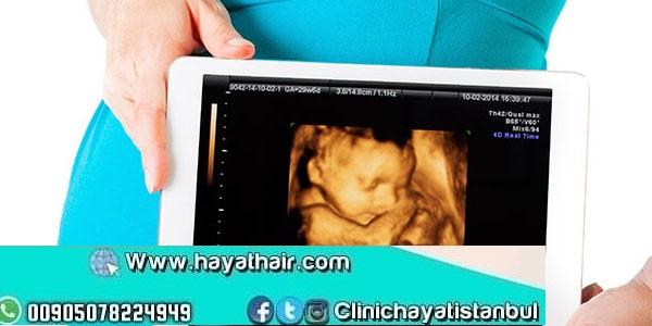 تحديد جنس المولود في تركيا