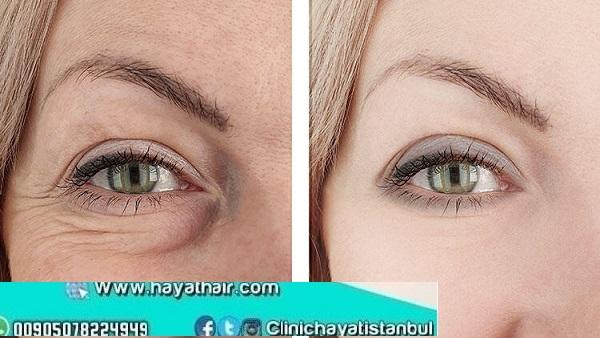 ازالة وعلاج تجاعيد تحت العينين