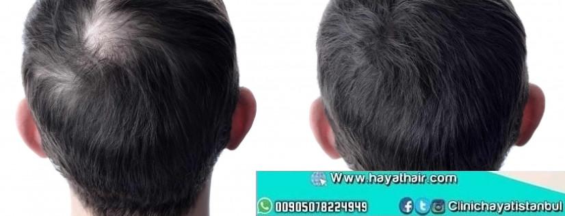 زراعة الشعر في تركيا 2021
